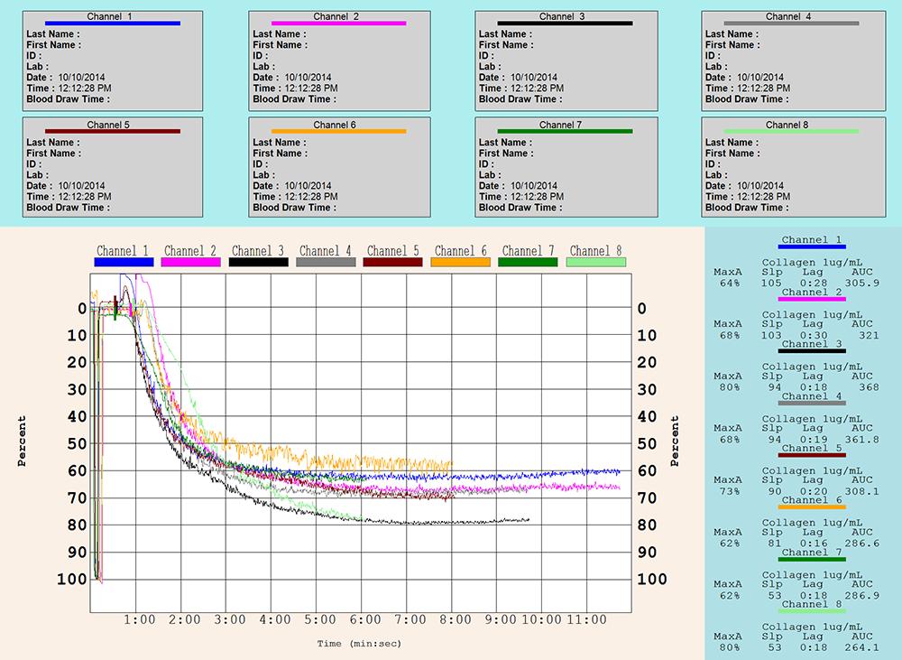 CHRONO-LOG Model 490 4+4 Aggregation with AGGRO/LINK® Opti8