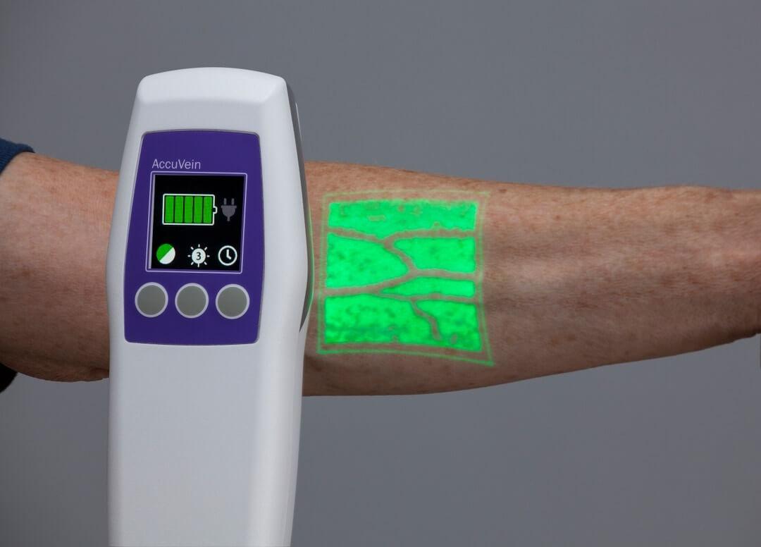 AccuVein AV500 in use for vein visualization
